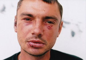 Poison Flower: The Underbelly of Harlow